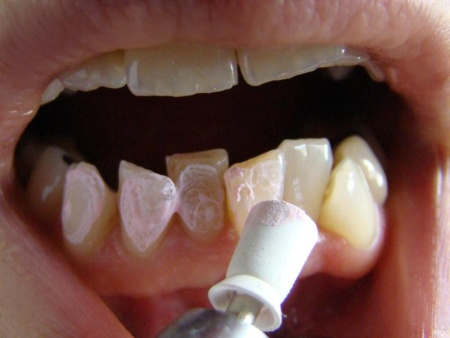 Zahnpaste