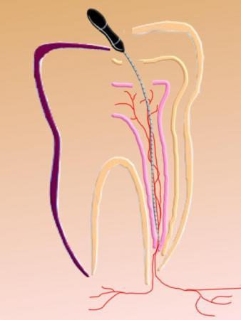 kranker Nerv wird entfernt