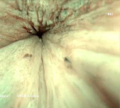 Blasenspiegelung mit neuem optischen Verfahren