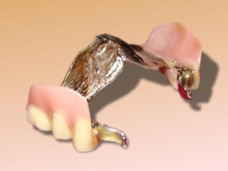 Geschiebeprothese