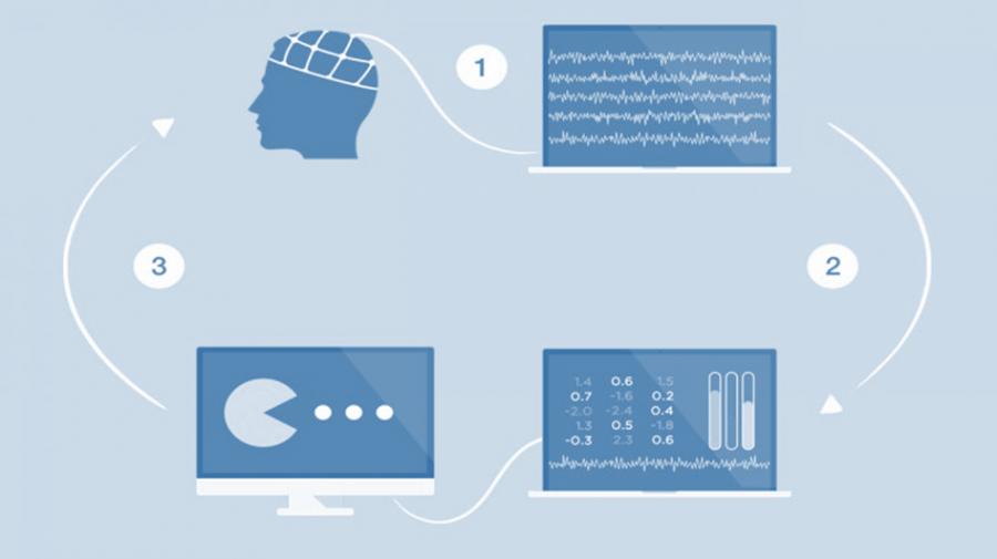 EEG-Neurofeedback