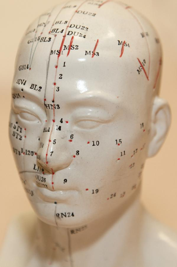 IMG_0407_Akupunktur-Kopf